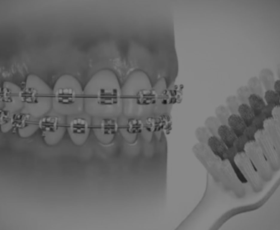 Brushing Techniques for Braces