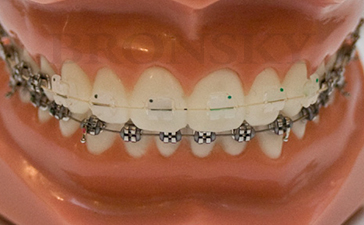 Upper Clear Braces Lower Stainless Steel Braces