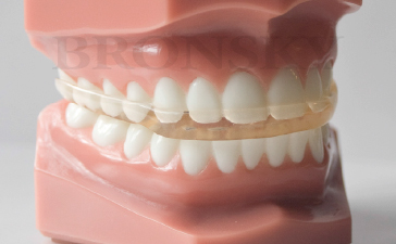 Full Coverage Splint Appliance Fcs Bronsky Orthodontics