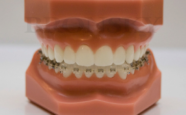 Invisible Upper Braces W Clear Lower Braces