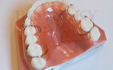 Maxillary Hawley Appliance Bronsky Orthodontics