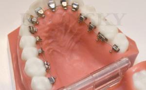 Lingual Braces at Bronsky Orthodontics